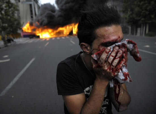 injured-iranian