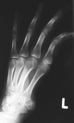 torture-x-rays-kurdistan